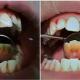 Zářivý úsměv prozrazuje skvělou péči o zuby