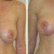 Nelíbí se vám tvar vašeho poprsí? Modelace prsou je optimální řešení