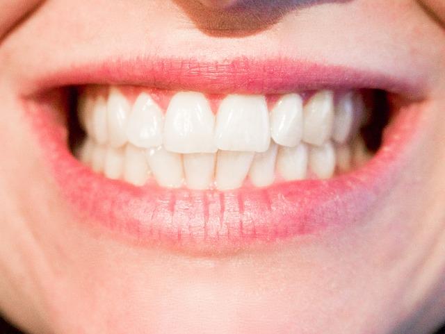 Zářivě bílé zuby docílíte díky správné péči